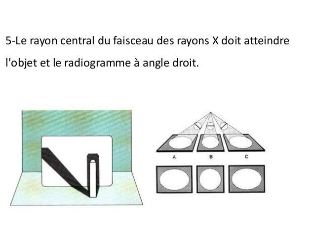 Pour que le radiogramme soit parallèle à l'axe longitudinal des dents, il est nécessaire de le placer éloigné des dents à ...
