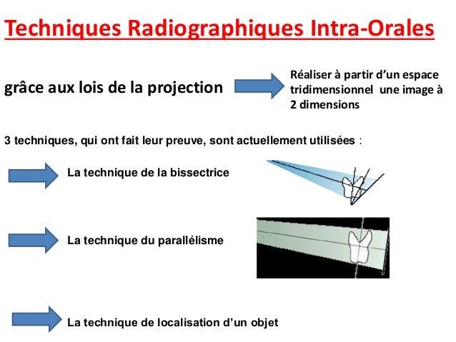On utilise des supports à radiogramme
