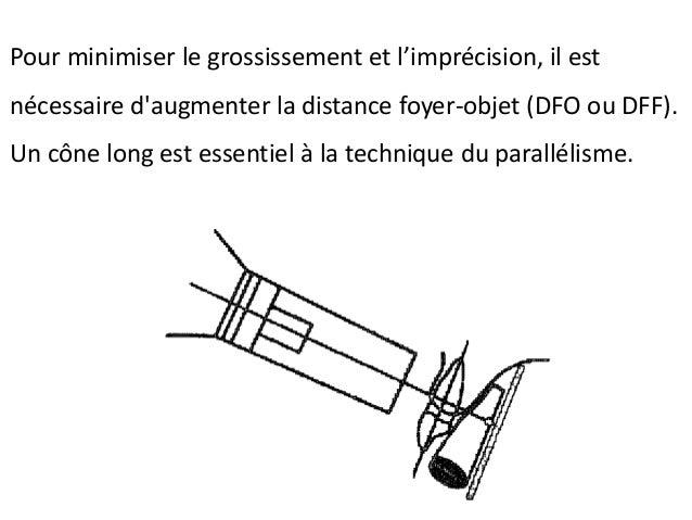 Technique de Clark (suite) Nous déplaçons fréquemment le cône dans l'angle vertical ce qui cause du raccourcissement et un...