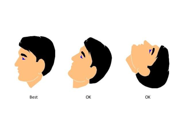 Le Film Occlusal L'intérêt : -l'utilisation de ce film est recherchée pour les vues occlusales du maxillaire supérieur et ...