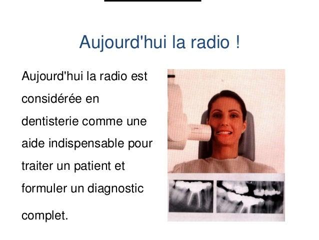 Radio défectueuse Film mal fixé :