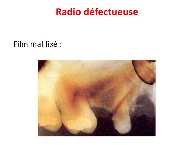 Conclusion La radiographie est un examen très courant et absolument indispensable de nos jour en médecine dentaire. Elle d...