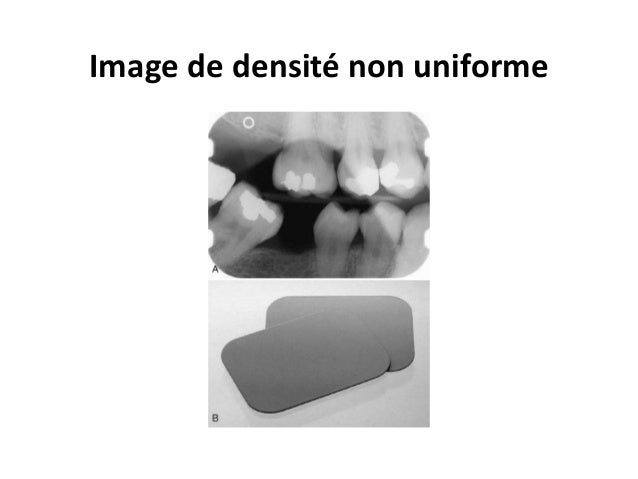 Radiographie intraorale