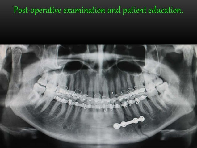 Opg And Extraoral Radiography. Wiring. Mouth Diagram Labeled Radiograph At Scoala.co