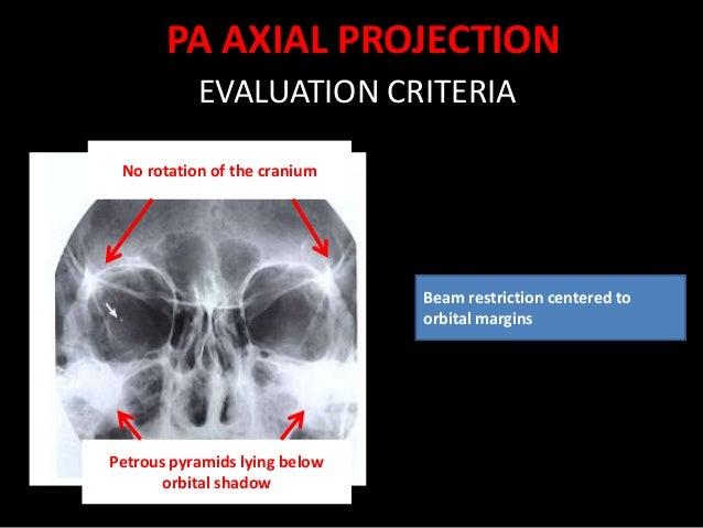 Radiography Of Eye