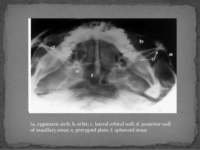 Radiography and Anatomy of orbit