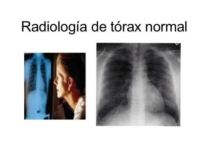 Radiología de tórax normal