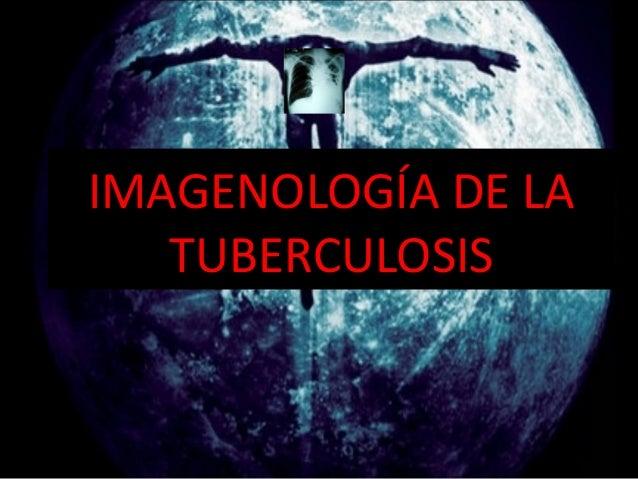 IMAGENOLOGÍA DE LA TUBERCULOSIS