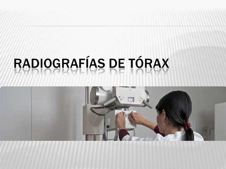 RADIOGRAFÍA DE TÓRAX LATERAL   Paciente de pie.   Girado hacia posición    lateral izquierda.   Se utiliza la posición ...