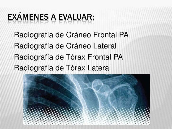 EXÁMENES A EVALUAR: Radiografía de Cráneo Frontal PA Radiografía de Cráneo Lateral Radiografía de Tórax Frontal PA Rad...