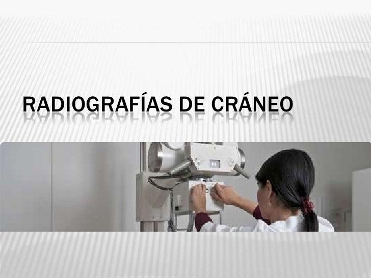 RADIOGRAFÍAS DE CRÁNEO