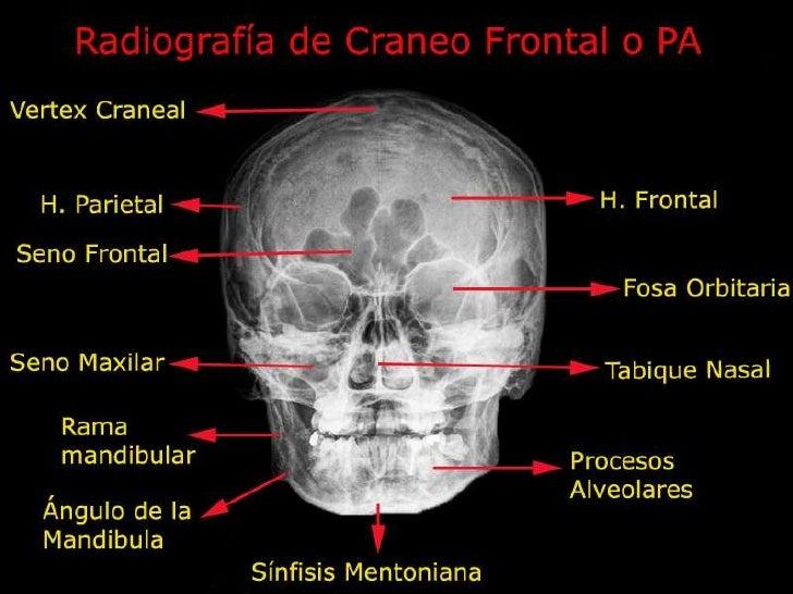 Radiología simple de cráneo y tórax