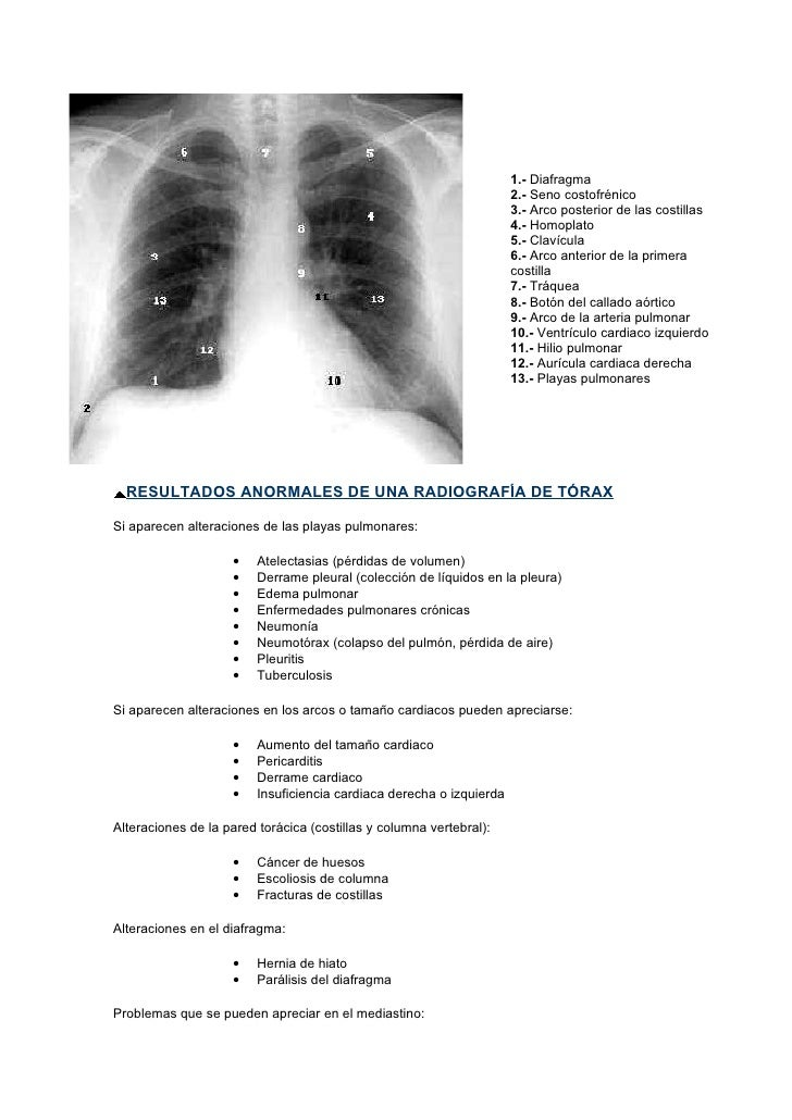 Radiologia Basica