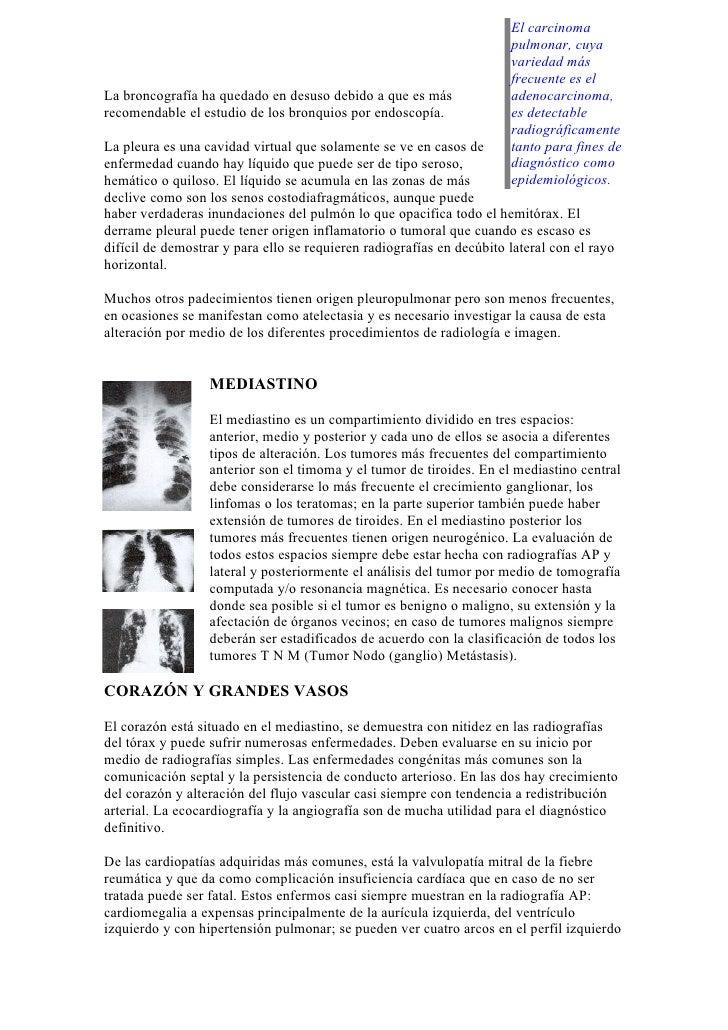 El carcinoma                                                                       pulmonar, cuya                         ...