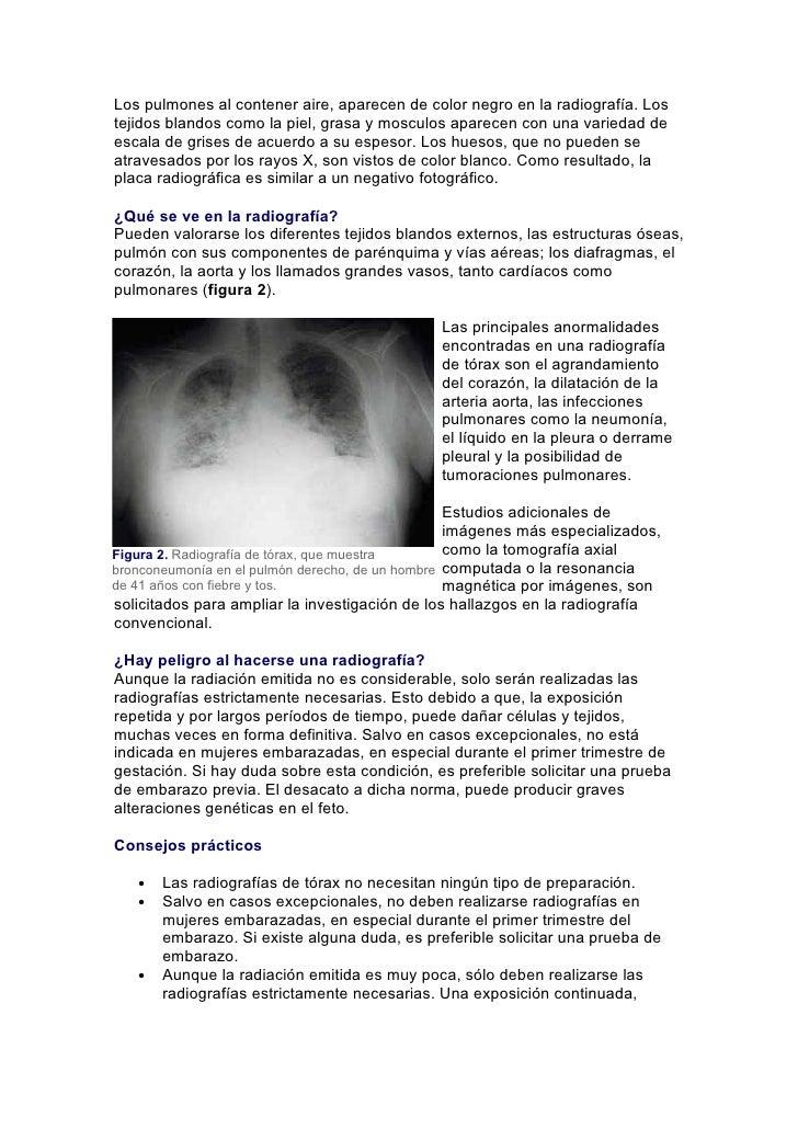 Los pulmones al contener aire, aparecen de color negro en la radiografía. Lostejidos blandos como la piel, grasa y mosculo...
