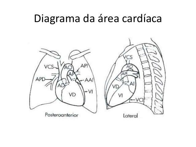 Radiologia do coração