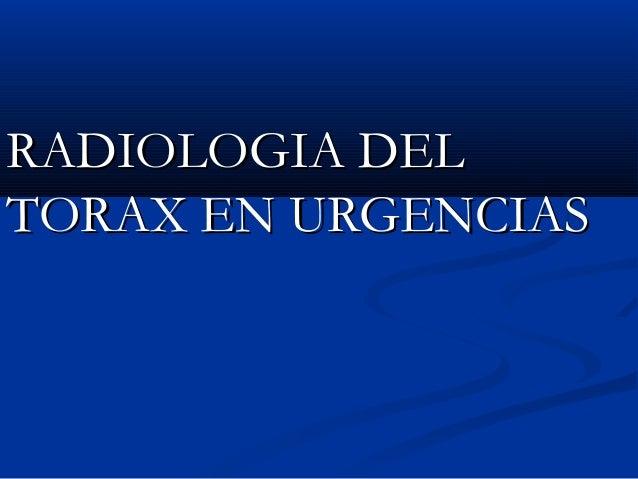 RADIOLOGIA DELRADIOLOGIA DEL TORAX EN URGENCIASTORAX EN URGENCIAS