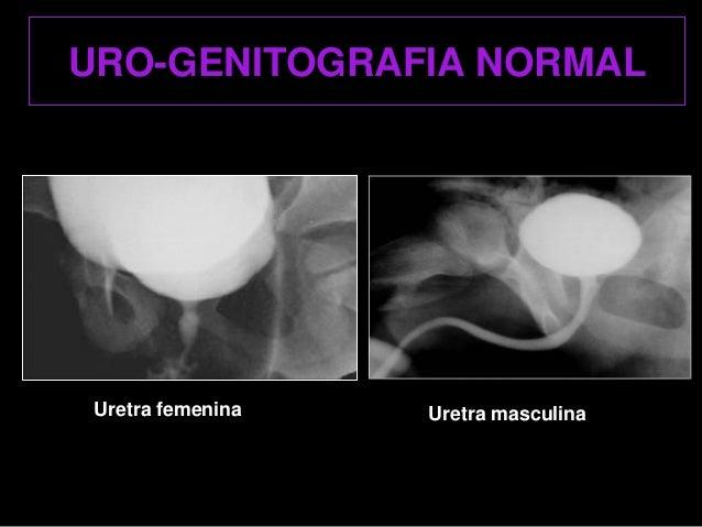 Radiologia pediàtria actualització en ecografia