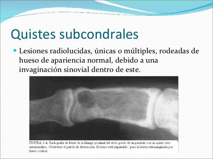 Esclerosis subcondral