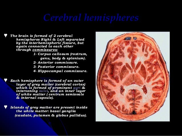 Radiological anatomy of brain