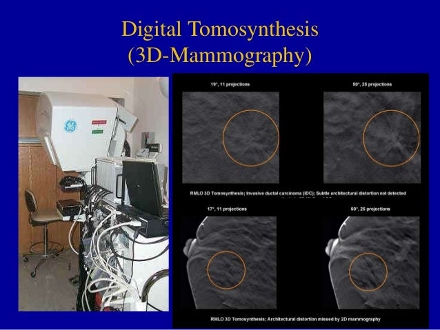 Digital tomosynthesis fda