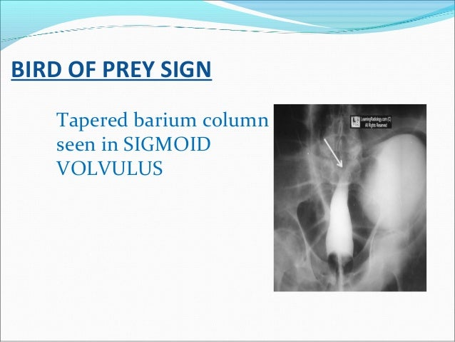 BIRD OF PREY SIGN Tapered barium column seen in SIGMOID VOLVULUS