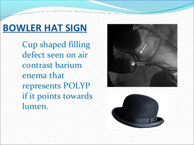BOWLER HAT SIGN Cup shaped filling defect seen on air contrast barium enema that represents POLYP if it points towards lum...