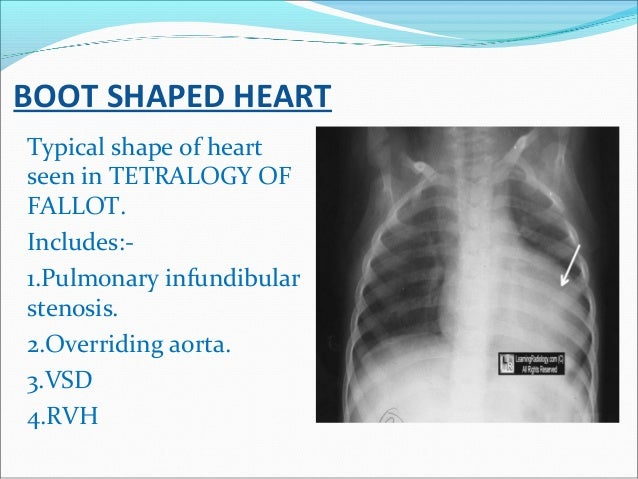 BOOT SHAPED HEART Typical shape of heart seen in TETRALOGY OF FALLOT. Includes:- 1.Pulmonary infundibular stenosis. 2.Over...