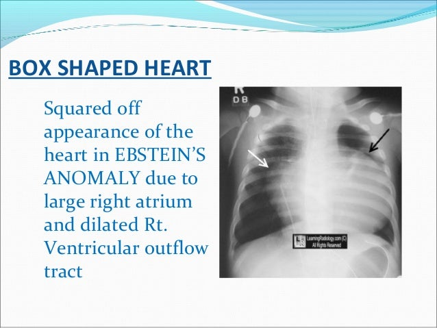 BOX SHAPED HEART Squared off appearance of the heart in EBSTEIN'S ANOMALY due to large right atrium and dilated Rt. Ventri...
