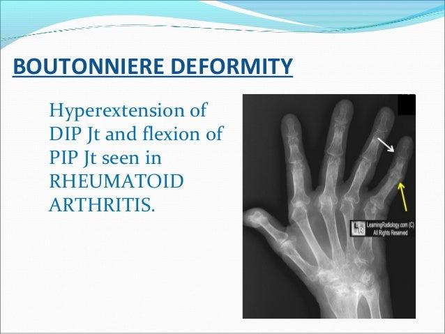 BOUTONNIERE DEFORMITY Hyperextension of DIP Jt and flexion of PIP Jt seen in RHEUMATOID ARTHRITIS.