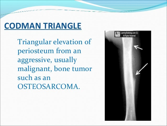 CODMAN TRIANGLE Triangular elevation of periosteum from an aggressive, usually malignant, bone tumor such as an OSTEOSARCO...