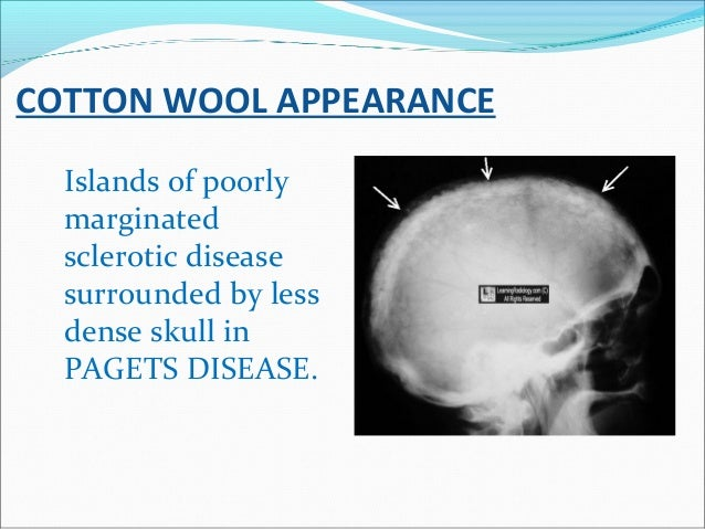 COTTON WOOL APPEARANCE Islands of poorly marginated sclerotic disease surrounded by less dense skull in PAGETS DISEASE.