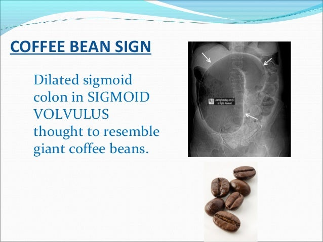 COFFEE BEAN SIGN Dilated sigmoid colon in SIGMOID VOLVULUS thought to resemble giant coffee beans.