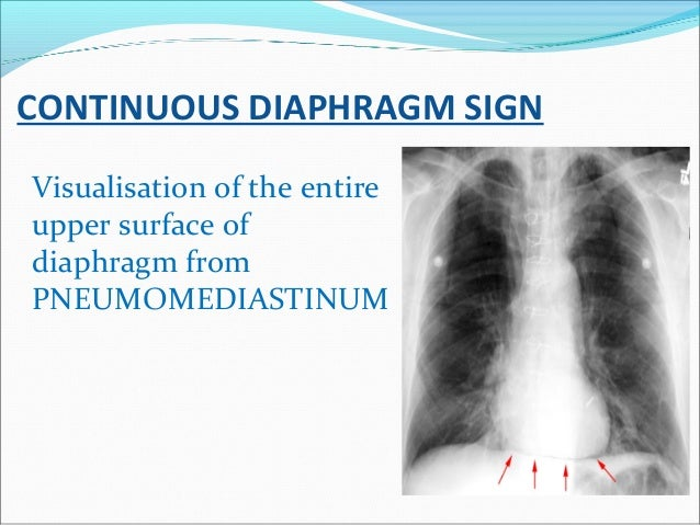 CONTINUOUS DIAPHRAGM SIGN Visualisation of the entire upper surface of diaphragm from PNEUMOMEDIASTINUM