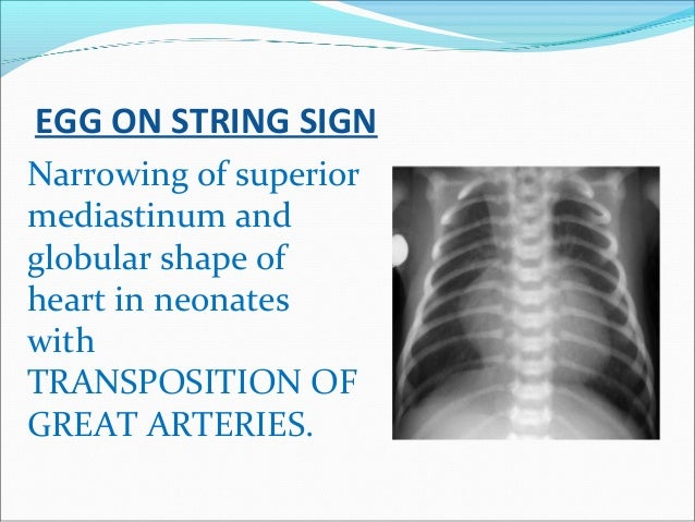EGG ON STRING SIGN Narrowing of superior mediastinum and globular shape of heart in neonates with TRANSPOSITION OF GREAT A...