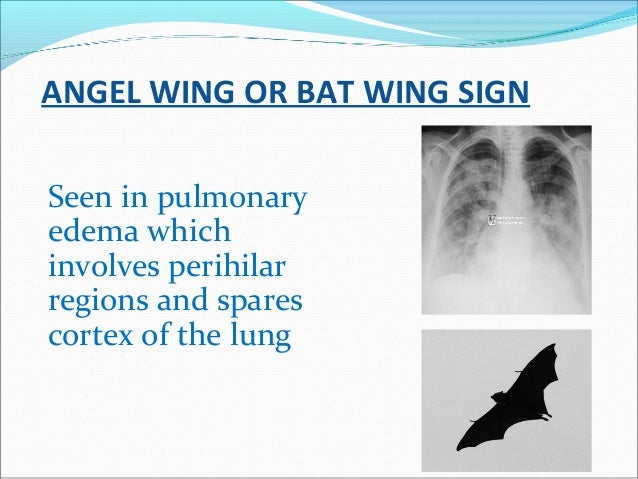 ANGEL WING OR BAT WING SIGN Seen in pulmonary edema which involves perihilar regions and spares cortex of the lung