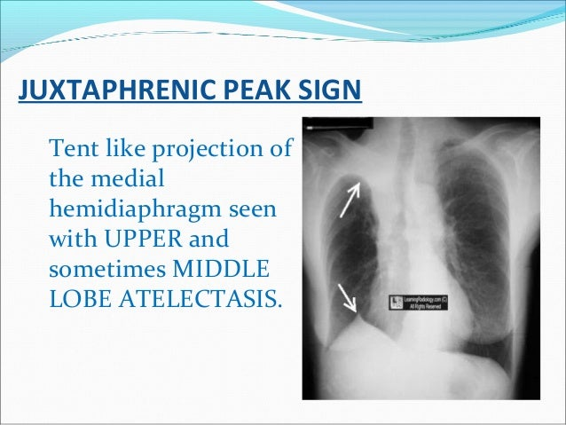 JUXTAPHRENIC PEAK SIGN Tent like projection of the medial hemidiaphragm seen with UPPER and sometimes MIDDLE LOBE ATELECTA...