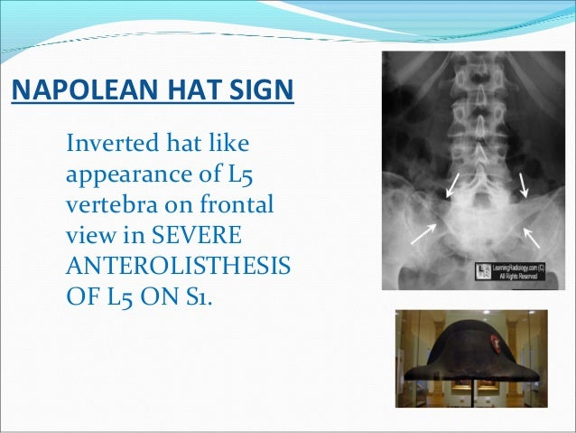 NAPOLEAN HAT SIGN Inverted hat like appearance of L5 vertebra on frontal view in SEVERE ANTEROLISTHESIS OF L5 ON S1.