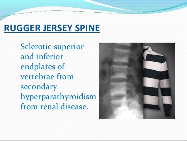 RUGGER JERSEY SPINE Sclerotic superior and inferior endplates of vertebrae from secondary hyperparathyroidism from renal d...
