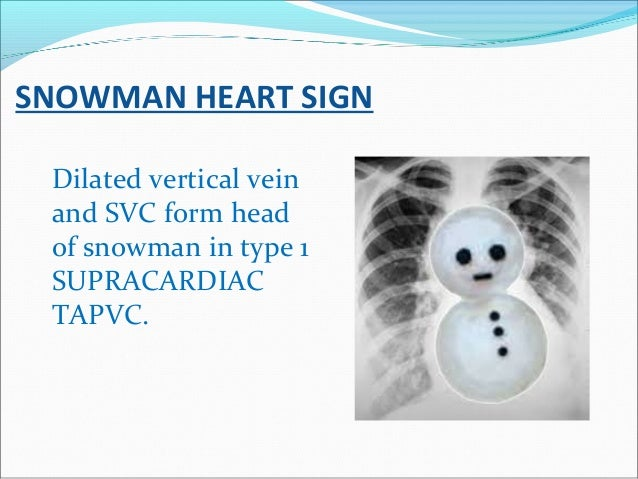 SNOWMAN HEART SIGN Dilated vertical vein and SVC form head of snowman in type 1 SUPRACARDIAC TAPVC.