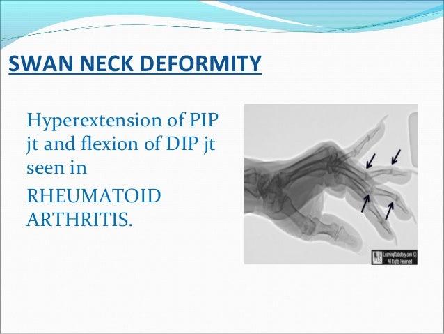 SWAN NECK DEFORMITY Hyperextension of PIP jt and flexion of DIP jt seen in RHEUMATOID ARTHRITIS.