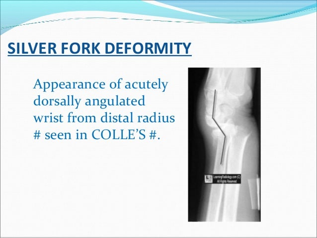 SILVER FORK DEFORMITY Appearance of acutely dorsally angulated wrist from distal radius # seen in COLLE'S #.