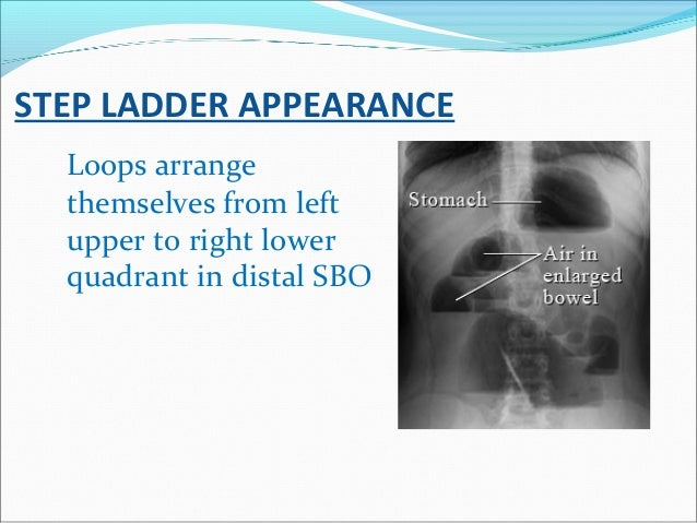 STEP LADDER APPEARANCE Loops arrange themselves from left upper to right lower quadrant in distal SBO