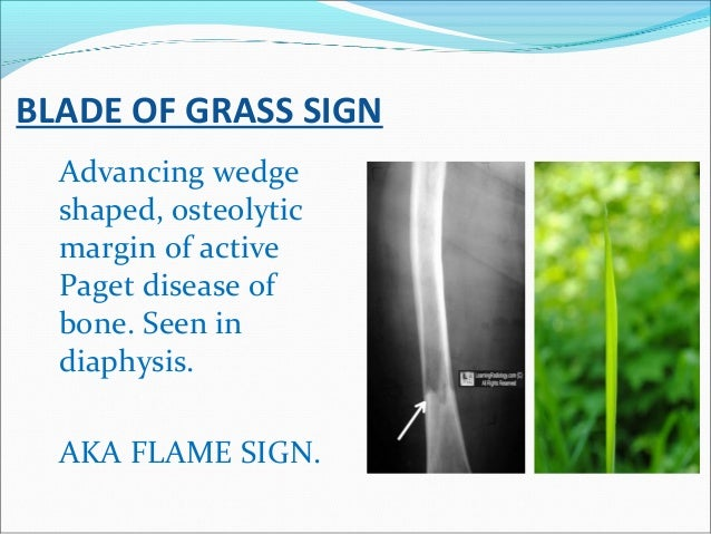 BLADE OF GRASS SIGN Advancing wedge shaped, osteolytic margin of active Paget disease of bone. Seen in diaphysis. AKA FLAM...