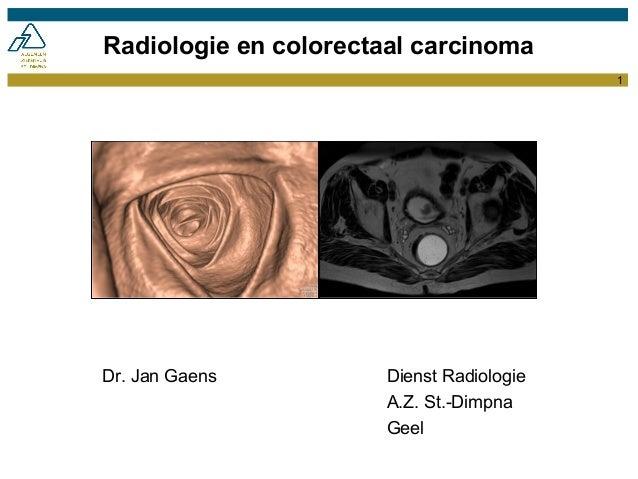 1Radiologie en colorectaal carcinomaDr. Jan Gaens Dienst RadiologieA.Z. St.-DimpnaGeel