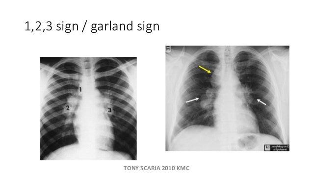1,2,3 sign / garland sign TONY SCARIA 2010 KMC ...