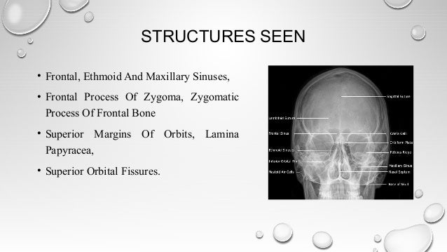 Radiological Imaging In Head And Neck And Relevant Anatomy
