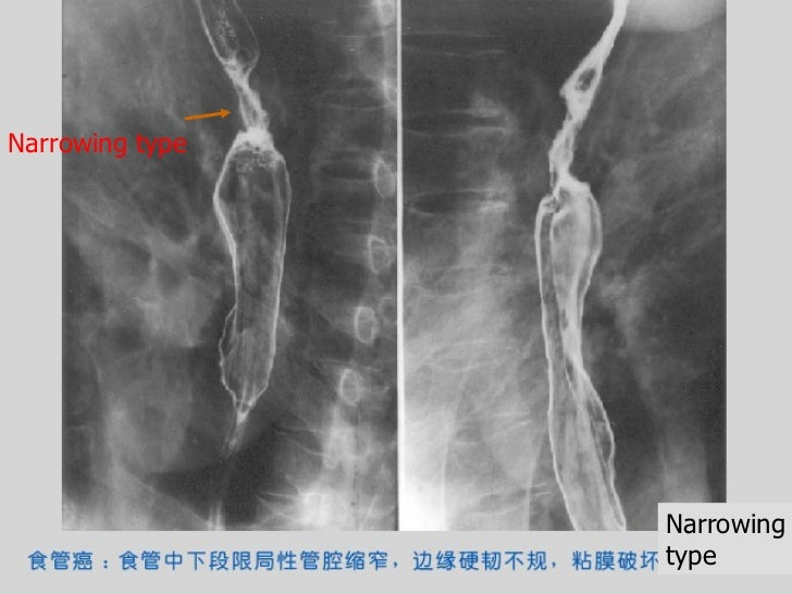 Tracheoesophageal Fistula Radiology   Search Results   Go 2017