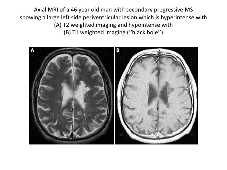 radiology of multiple sclerosis