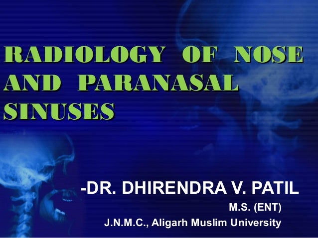 Radiology of nose and pns by drdhiru456 radiology of noseradiology of nose and paranasaland paranasal sinusessinuses dr fandeluxe Images